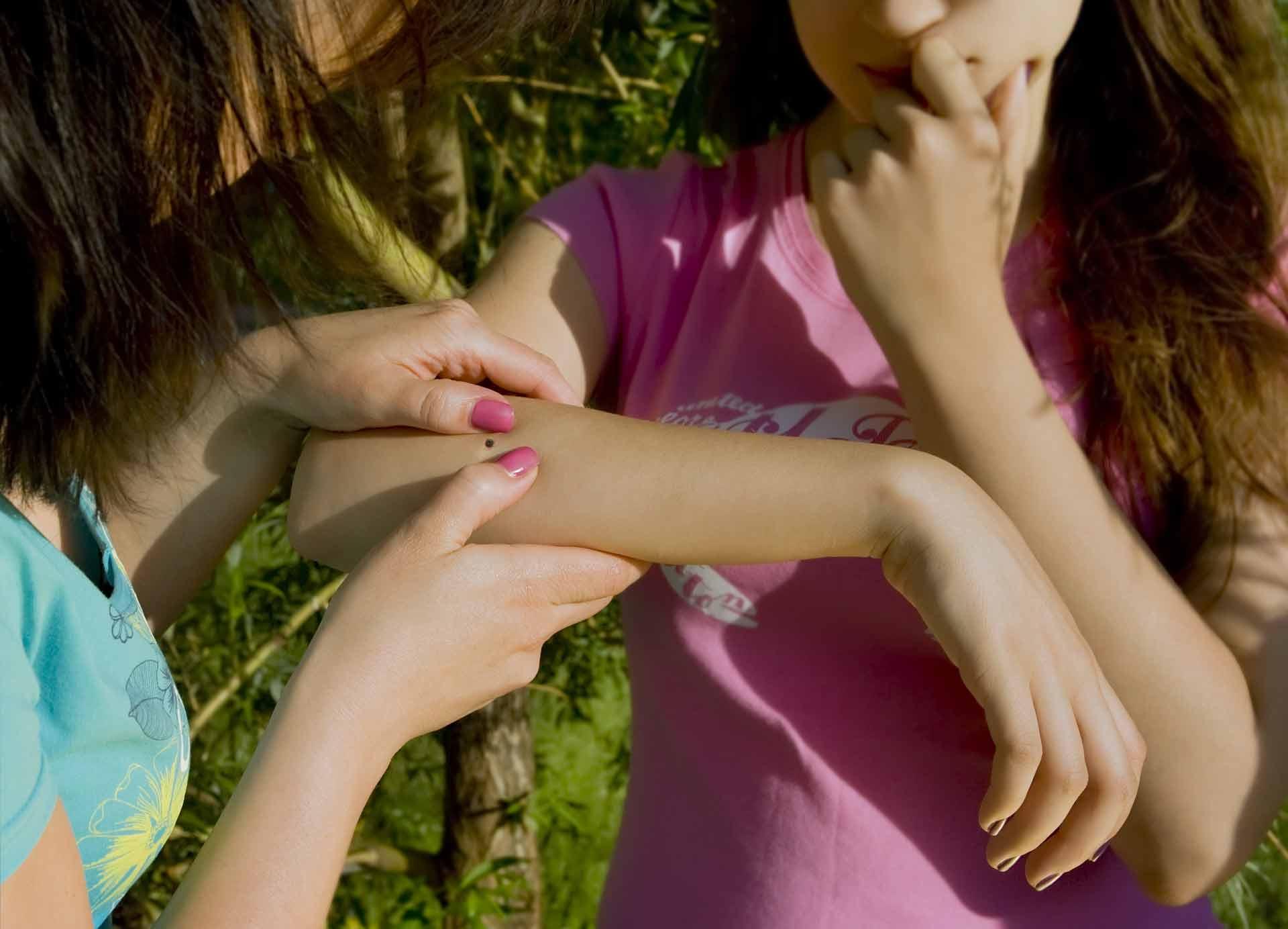 Tick On An Arm